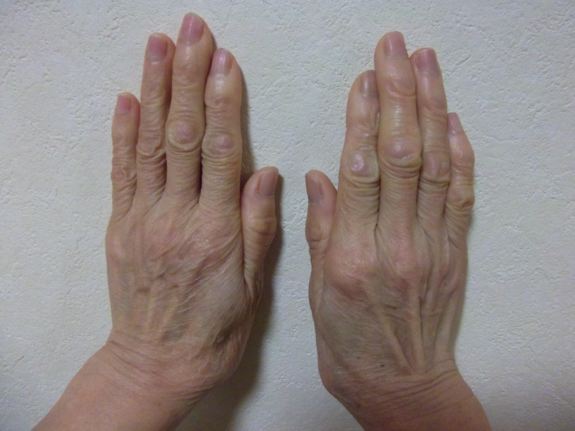 老けた手に見える3つの印象